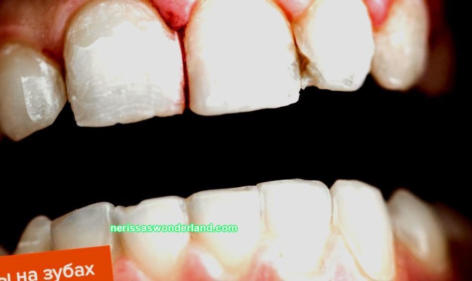 Drainage in the gums: why is it needed, how to remove it